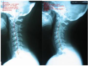 Importancia de la curvatura en la columna - Centro Quiropráctico en Monterrey